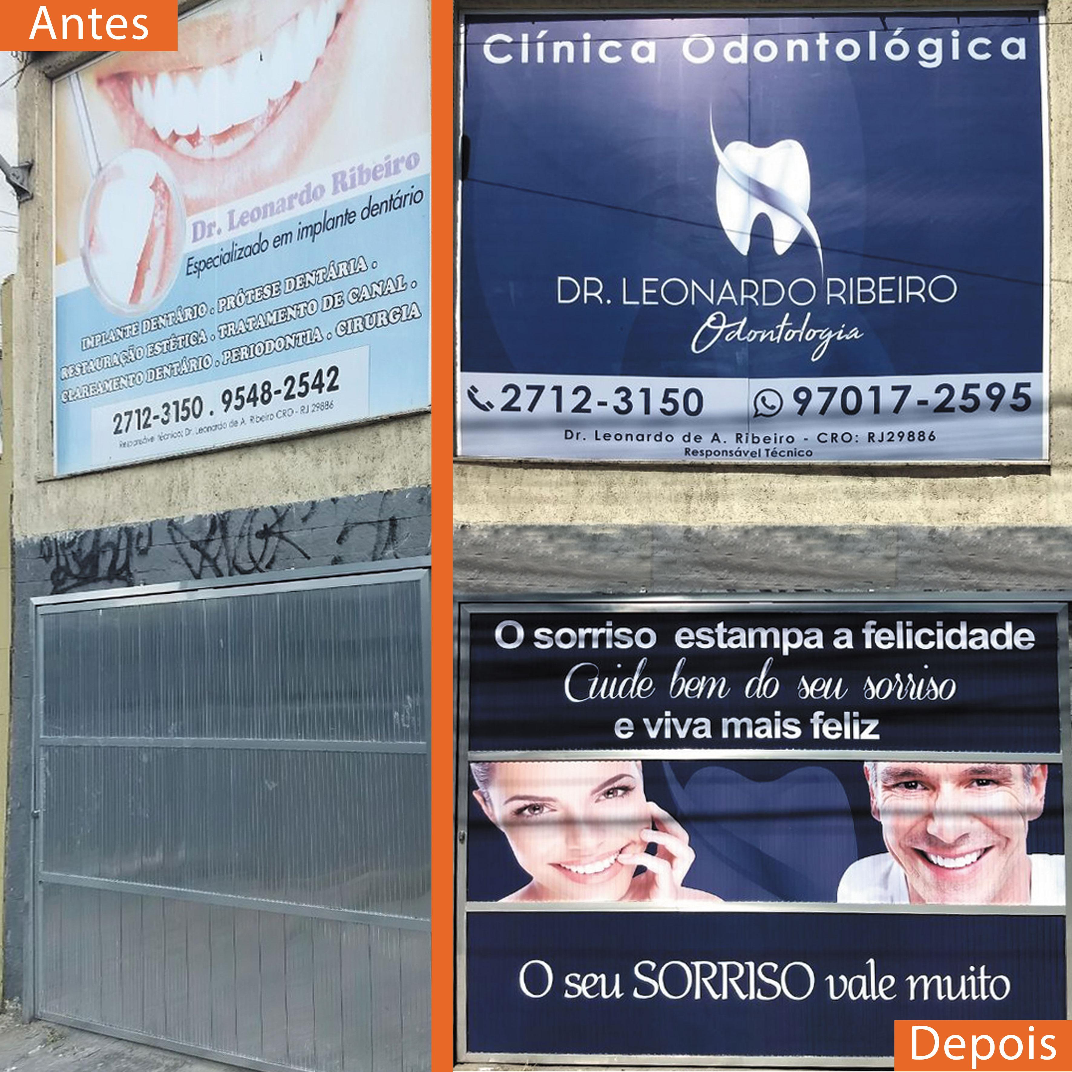 antes-e-depois-clinica-de-dentista